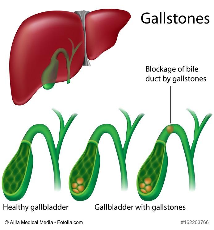 Gallenblase mit Steinen